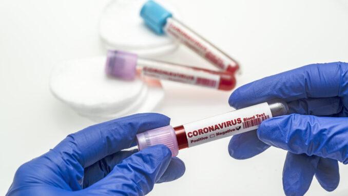 Какие приложения помогут записаться на тест на коронавирус